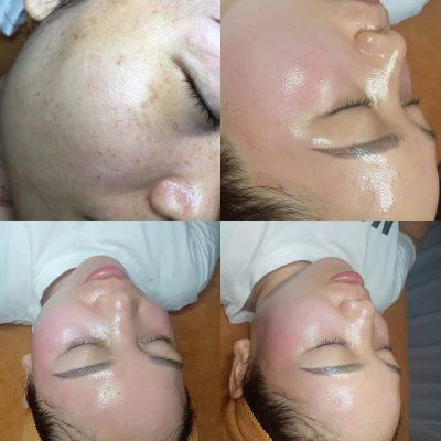 hình ảnh trước và sau khi làm căng bóng da caviar